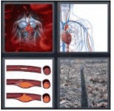 answer-artery-2