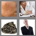 cheats-4-pics-1-word-5-letters-pores-7119154